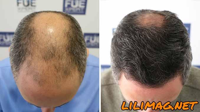 کاشت مو FIT؛ همه چیز درباره کاشت مو به روش FIT