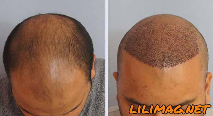 آیا ریزش مو بعد از کاشت مو به روش FIT طبیعی است؟