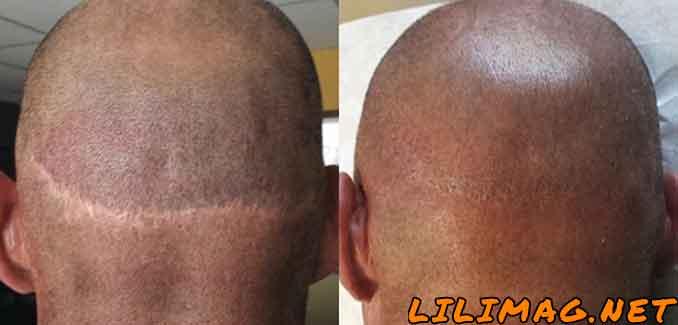 عوارض کاشت مو به روش FUT