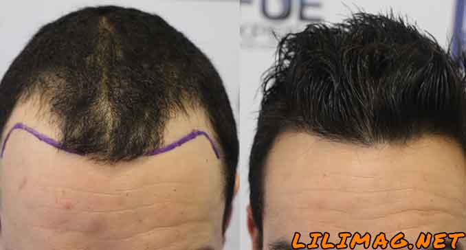 مراحل کاشت مو؛ قدم به قدم با مراحل کاشت موی طبیعی